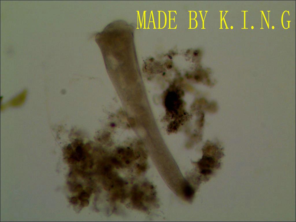 活性污泥微生物镜检
